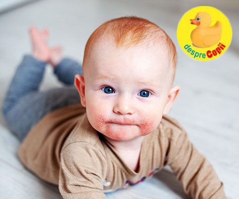 Eczema la bebelusi: cum arata, cauze si tratament - ghid