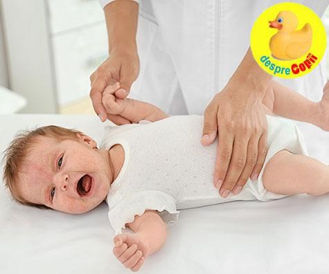 Infectia cu drojdie la bebelusi