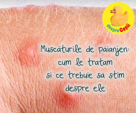 Muscaturile de paianjen