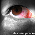 Ochii rosii
