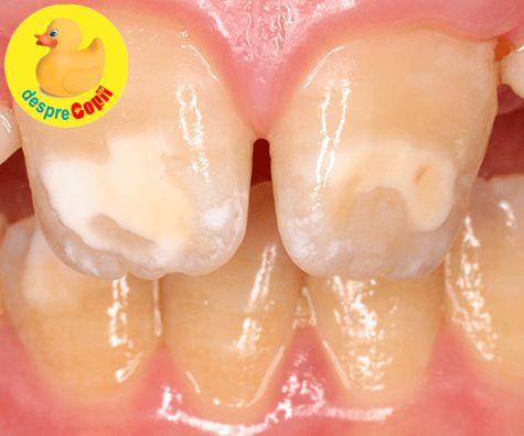 Fluorul: prieten sau dusman pentru dintii copilului?