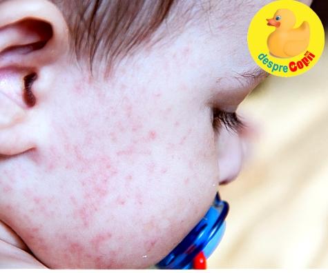Ce alimente pot produce alergie bebelusului?
