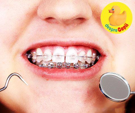 De ce trebuie purtat aparatul dentar in copilarie: motive si beneficii