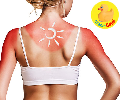 Arsurile solare, tratamente la indemana