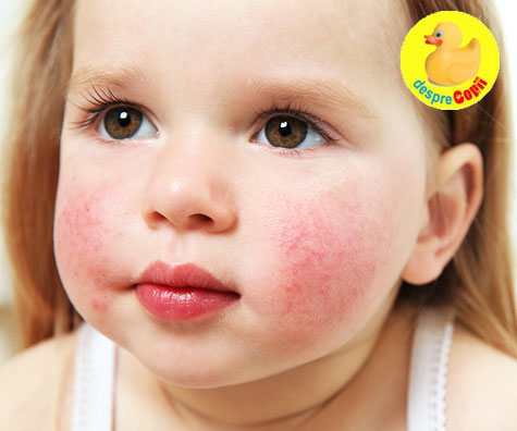 Boala a cincea, eritemul infectios sau boala obrajilor palmuiti