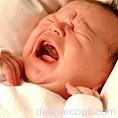 Hernia ombilicala la bebelus