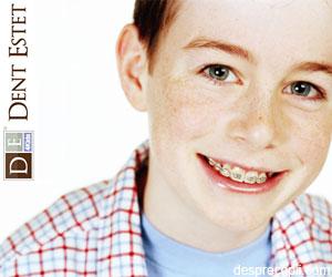 65% dintre copiii cu varste intre 10 si 14 ani au nevoie de aparat dentar