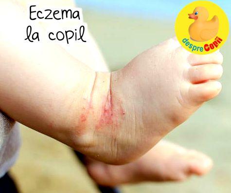 Eczema la copil