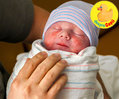 Muscatura de barza la nou nascuti si alte semne din nastere