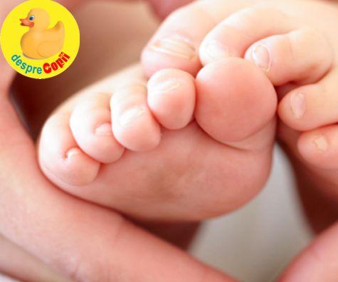 Piciorul stramb congenital la bebelus si tratarea lui