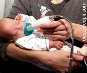 Alimentatia bebelusului prematur