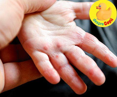 Scabia (raia): semne, tratament si recomandari