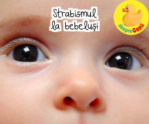 Strabismul la bebelusi