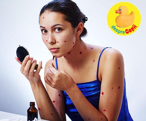 5 lucruri pe care ar trebui sa le stii despre varicela si zona zoster