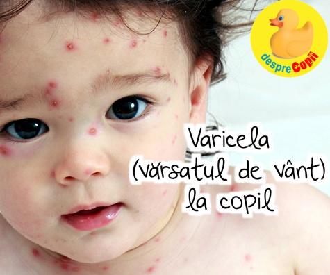 Varicela (varsatul de vant) la copil: simptome, complicatii, tratament