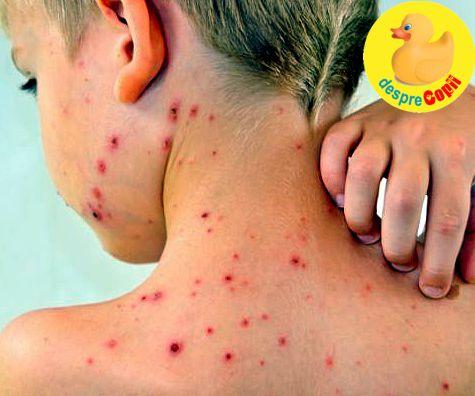 Tratamentul varicelei sau varsatului de vant - la copil